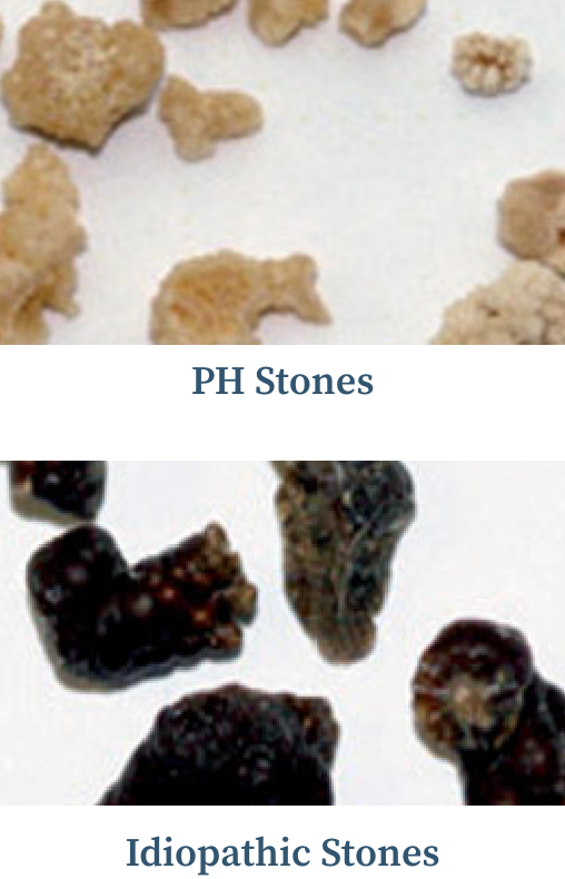 Graphic showing the burden of kidney stones in people with primary hyperoxaluria, and images of idiopathic and primary hyperoxaluria stones.