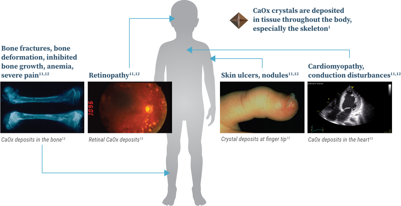 Graphic with images showing how systemic oxalosis can affect people with primary hyperoxaluria.