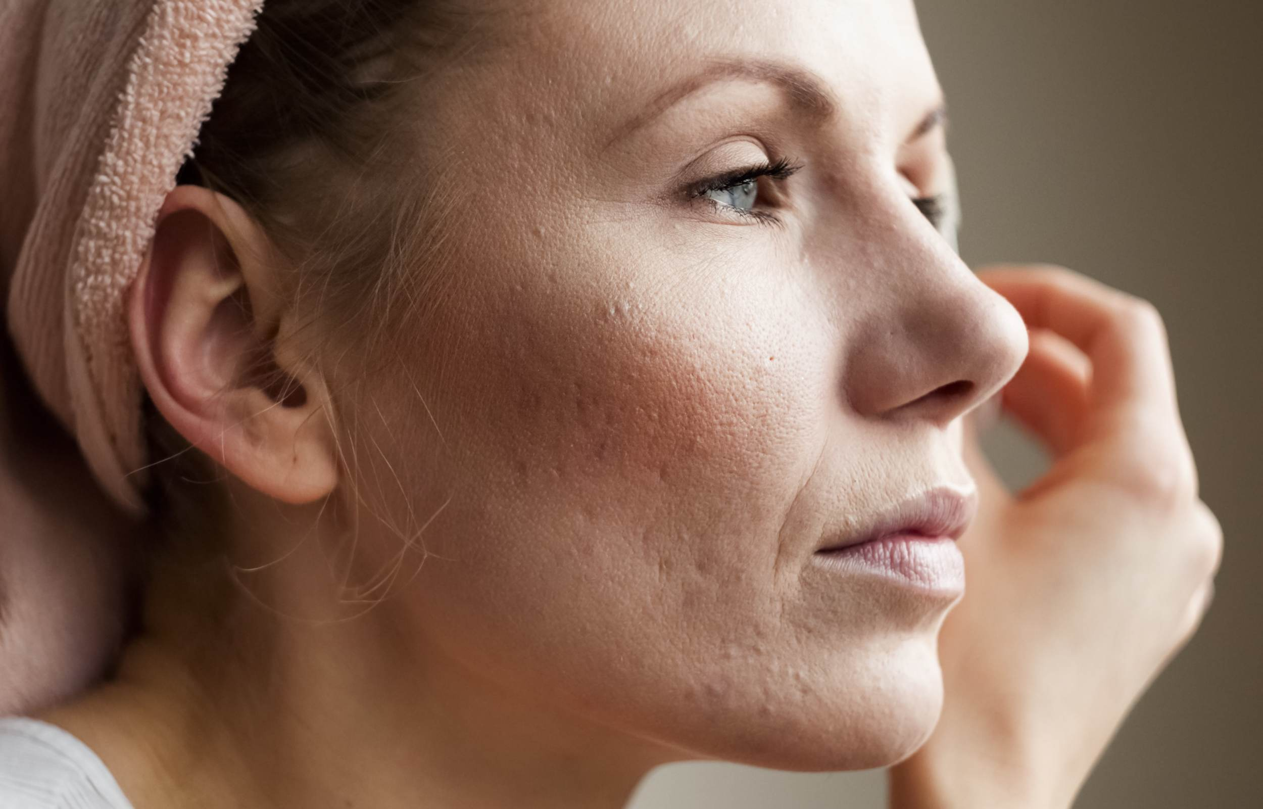 How To Treat Acne Scars Aedition
