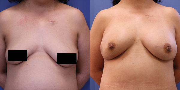 10-16-2019 Editorial Before-After BreastReconstruction